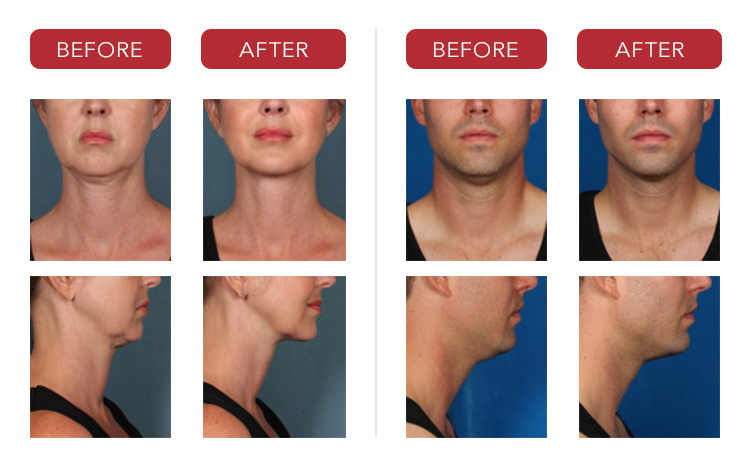 kybella-before-after-photos-2
