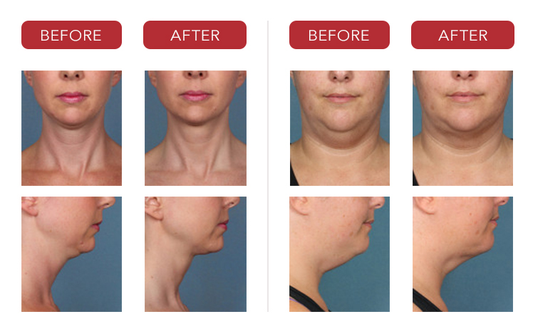 kybella-before-after-photos