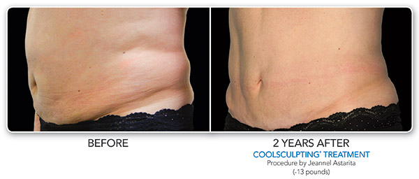 coolsculpting-ba-astarita-2set-2years-oblique-cmyk-hires