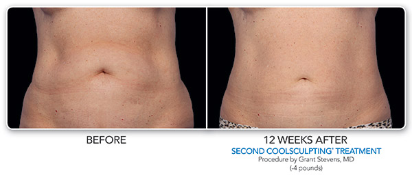 coolsculpting-ba-stevens-2set-cmyk-hires