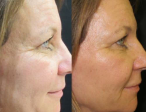 Sagging Jawline? Give Those Jowls A Lift