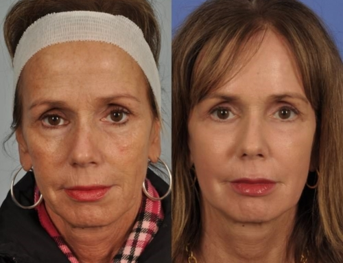 """The 3D Rx Procedure – Addressing the 3 """"D's"""" of Aging = 1 Incredible Result"""
